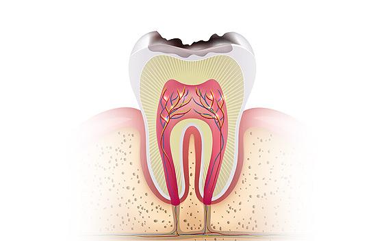 odontologia-conservadora-web