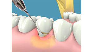 como se realiza una periodoncia